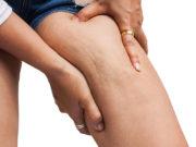 aliments à éviter contre la cellulite